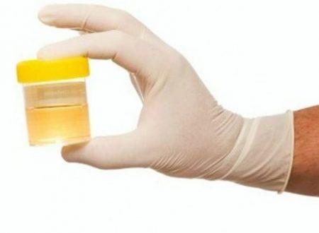 Come smaltire in fretta il THC dalle urine? 5 possibili rimedi di emergenza