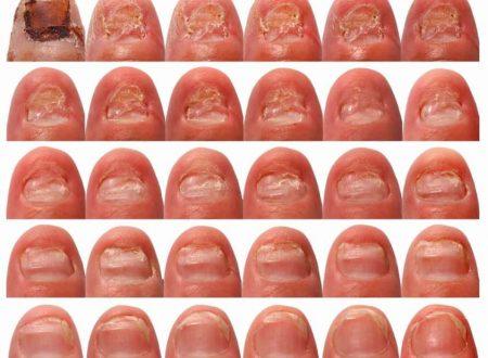 Funghi alle unghie: ecco come eliminarli con bicarbonato di sodio e aceto di mele